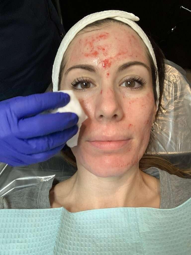 Houston lifestyle blogger Maria Munoz during microneedling procedure