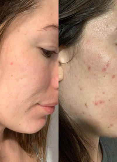 Dermatologist-Approved Hormonal Acne Treatment